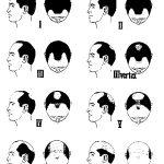 【ハゲ】米の研ぎ汁を頭皮に塗れば髪が生えると発表される  [猪木いっぱい★]