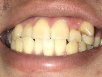 【ニュース・雑談】歯が一本だけとんでもない位置に生えてるんだが